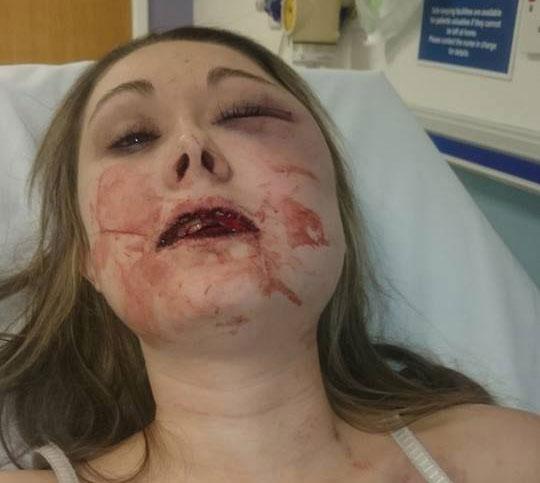 stephanie littlewood assault