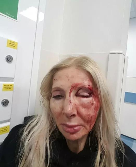 Woman Attacked In London