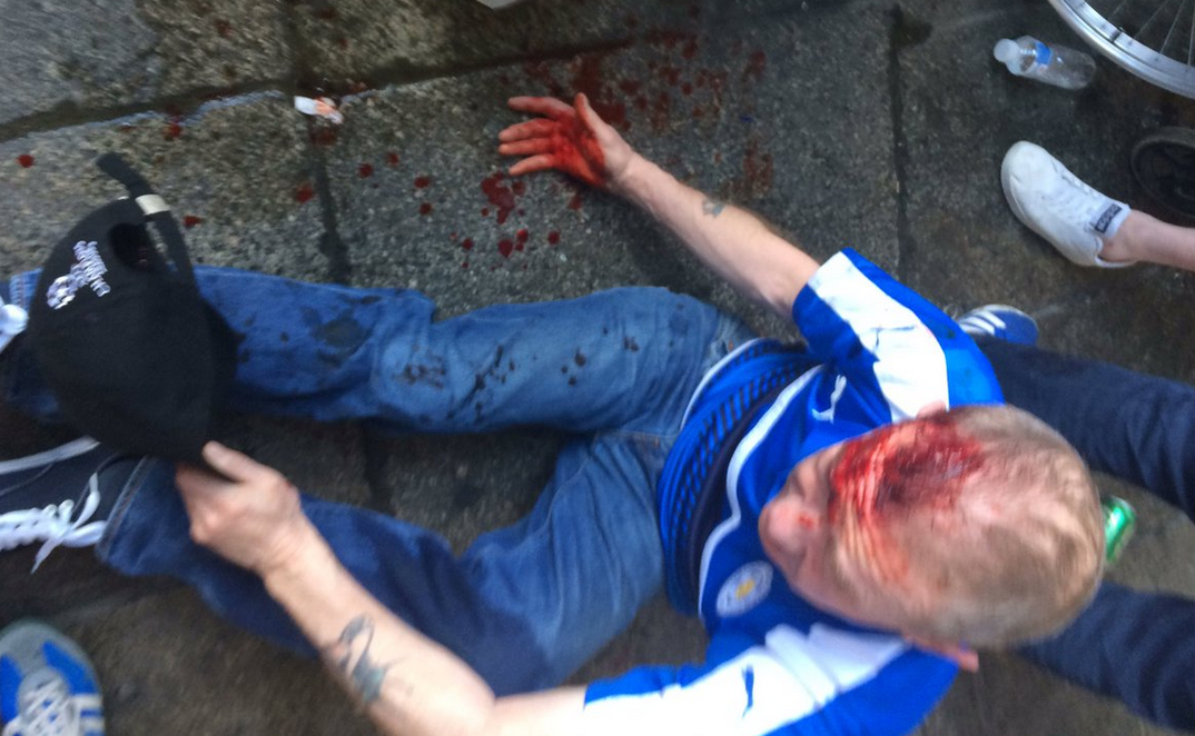 Leicester City Fan After Clash